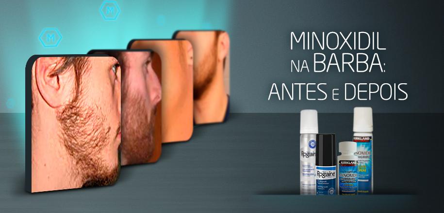 Minoxidil na Barba - Antes e Depois